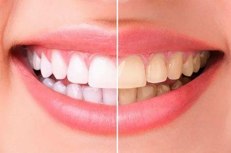 Уход за зубами и ротовой полостью