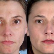 Лазерный пилинг для лечения и омоложения кожи