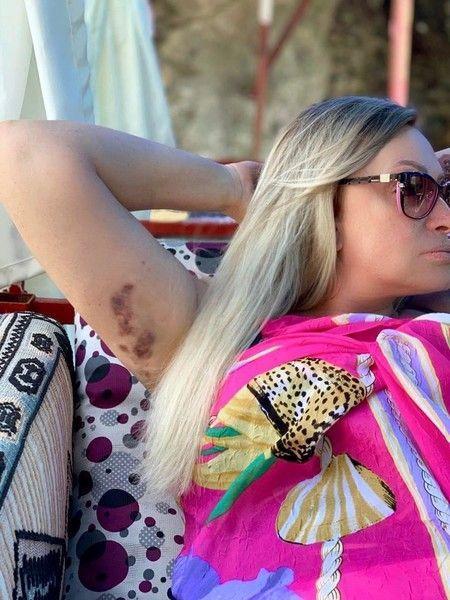 Певица Наталия Гулькина повредила руку на отдыхе