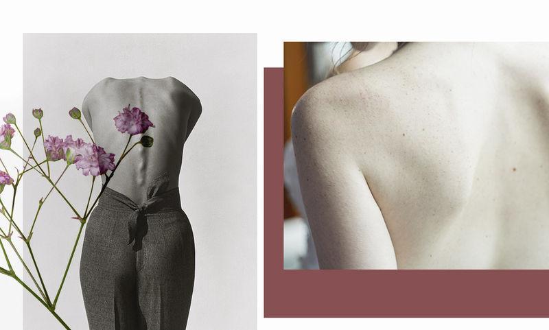 6 важных вопросов о раке кожи