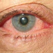 Блефароконъюктивит – тяжелое заболевание глаз