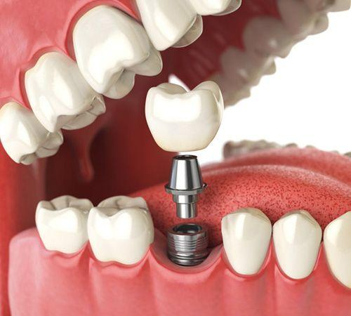 Популярные производители имплантов для стоматологии