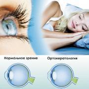 Преимущества и недостатки ночных линз для коррекции зрения