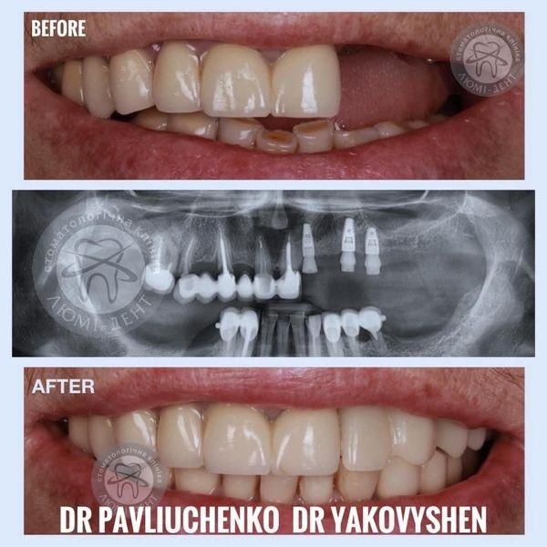 Имплантация зубов: этапы, последствия и методы проведения процедуры